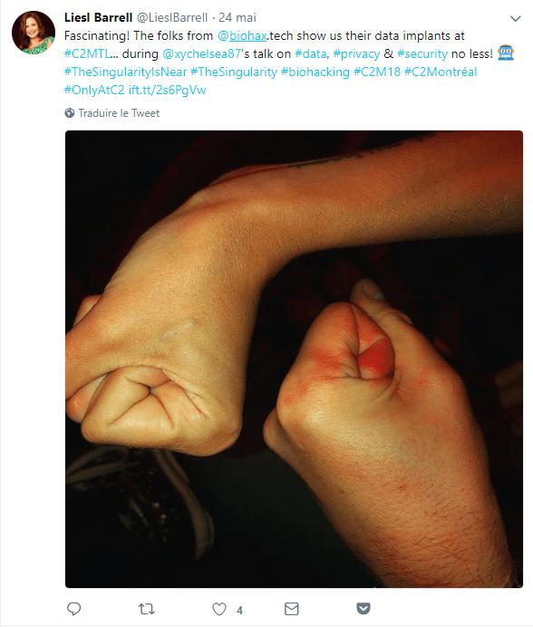5 - fist